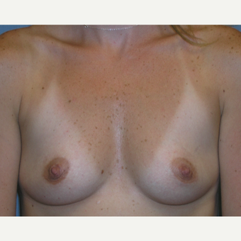 25-34 year old woman treated with Breast Augmentation before 3174636