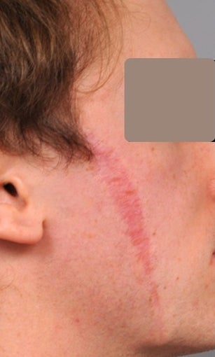25-34 year old man treated with Scar Removal before 2094221