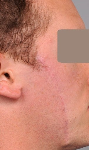 25-34 year old man treated with Scar Removal after 2094221