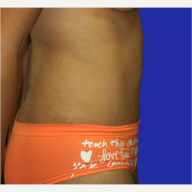 25-34 year old man treated with Tummy Tuck after 3519859