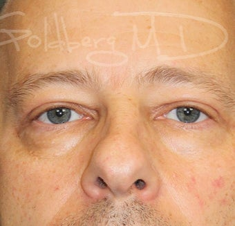 Blepharoplasty (Upper Eyelids) after 3217714