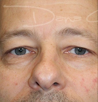 Blepharoplasty (Upper Eyelids) before 3217714