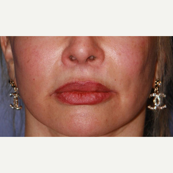Lip Lift after 3710928