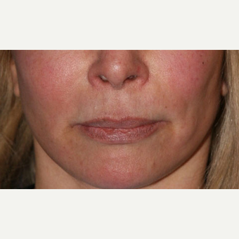 Lip Lift before 3710928