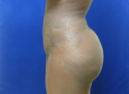 Brazilian Butt lift via fat transfer 916734