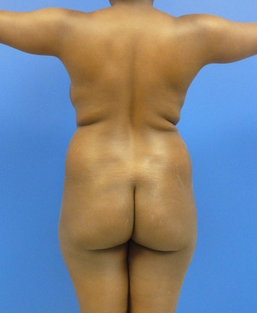 Brazilian Butt lift via fat transfer before 916734