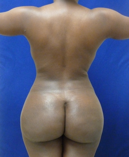 Brazilian Butt lift via fat transfer after 916734