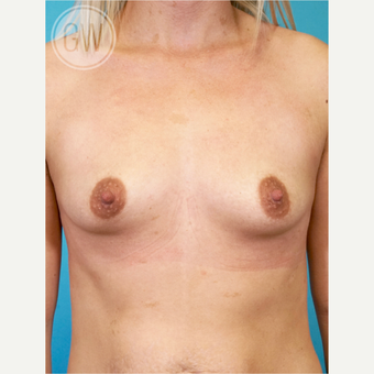25-34 year old woman treated with Breast Augmentation before 3468706
