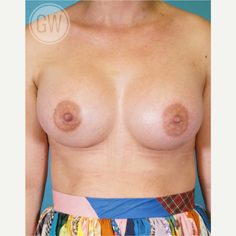 25-34 year old woman treated with Breast Augmentation after 3468706