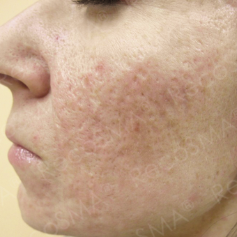 26 year old man with acne scars treated with RecoSMA after 2974589
