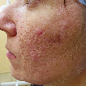26 year old man with acne scars treated with RecoSMA before 2974589