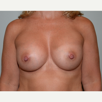 48 year old woman treated with Breast Augmentation after 3226312