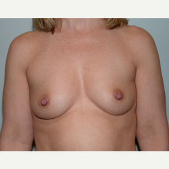48 year old woman treated with Breast Augmentation before 3226312
