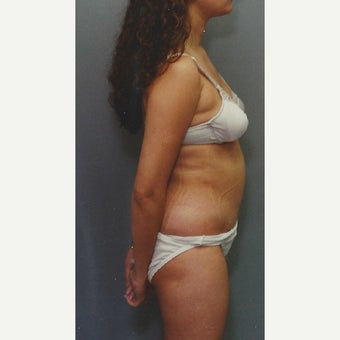 42 year old woman treated with Liposuction of her Abdomen after 1663366