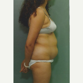 42 year old woman treated with Liposuction of her Abdomen before 1663366