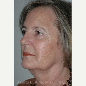 61 year old woman treated with Facelift before 3486245