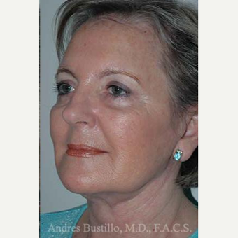 61 year old woman treated with Facelift after 3486245