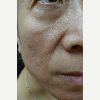 55-64 year old woman treated with Juvederm before 1551734
