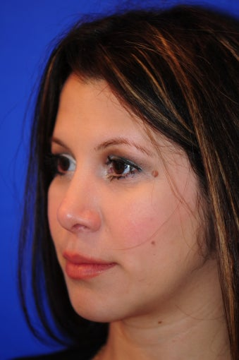 27 year old woman who underwent a primary rhinoplasty and chin augmentation after 1124055
