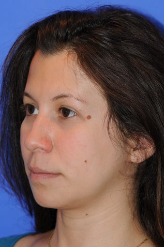 27 year old woman who underwent a primary rhinoplasty and chin augmentation before 1124055