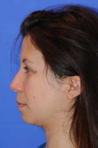 27 year old woman who underwent a primary rhinoplasty and chin augmentation 1124055