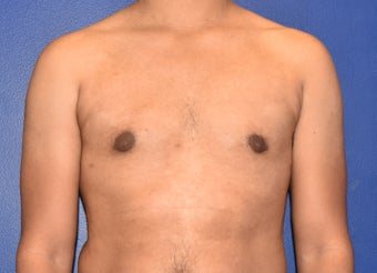 25-34 year old man treated with Laser Liposuction & Excision of Bilateral Breast Buds after 3508787