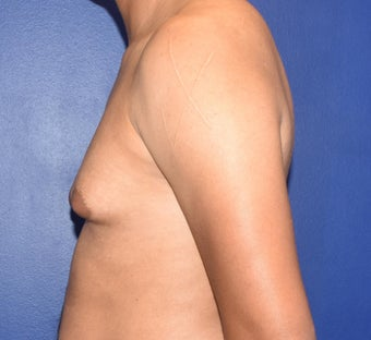 25-34 year old man treated with Laser Liposuction & Excision of Bilateral Breast Buds 3508787