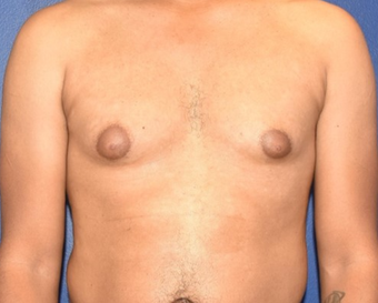 25-34 year old man treated with Laser Liposuction & Excision of Bilateral Breast Buds before 3508787