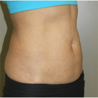 45-54 year old woman treated with SculpSure after 3115665