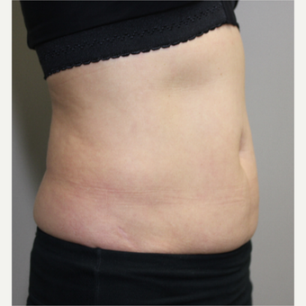 45-54 year old woman treated with SculpSure before 3115665