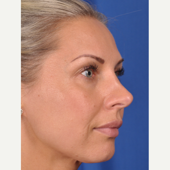 37 year old woman treated with Rhinoplasty after 3220408