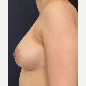 35-44 year old woman treated with Breast Implant Revision after 3836249