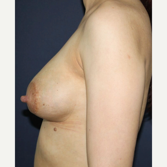 35-44 year old woman treated with Breast Implant Revision before 3836249