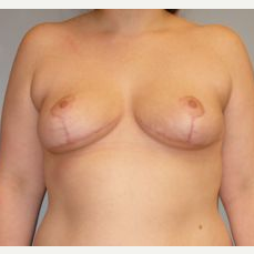 25-34 year old woman treated with Breast Reduction after 3122515