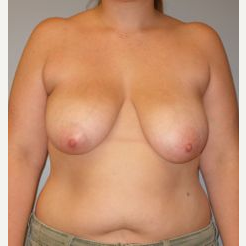 25-34 year old woman treated with Breast Reduction before 3122515