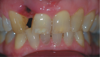 Removing a horrid front tooth after 35 years with Invisalign before 730931