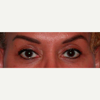 Female treated with Browlift/Upper Lids Surgery after 3744361