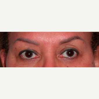 Female treated with Browlift/Upper Lids Surgery before 3744361