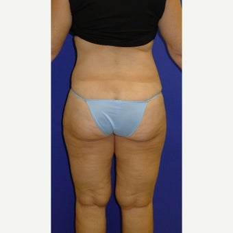 55-64 year old woman treated with Vaser Liposuction