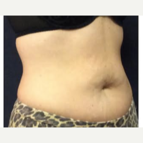 35-44 year old woman treated with SculpSure after 3842815