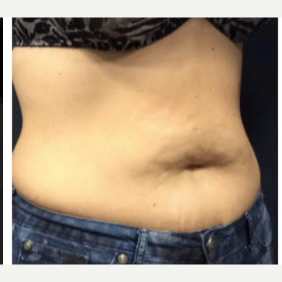 35-44 year old woman treated with SculpSure before 3842815