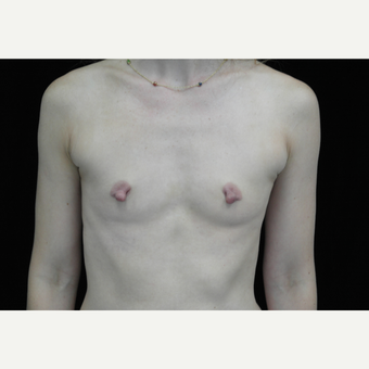 25-34 year old woman treated with Breast Implants before 3281791