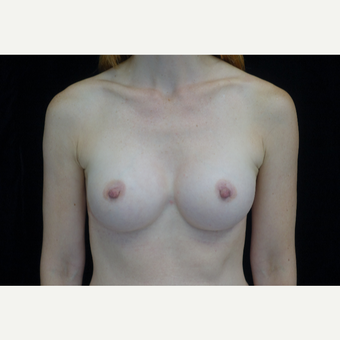 25-34 year old woman treated with Breast Implants after 3281791
