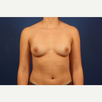 Breast Augmentation before 3744118