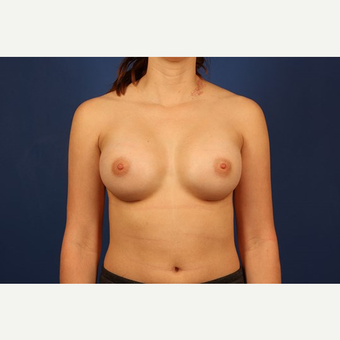 Breast Augmentation after 3744118
