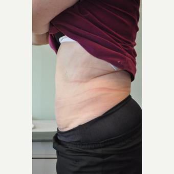 35-44 year old woman treated with Mini Tummy Tuck after 3603306