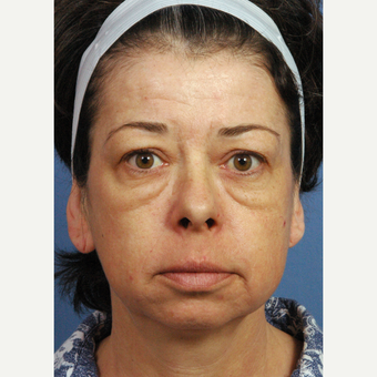45-54 year old woman treated with Facelift before 3658176