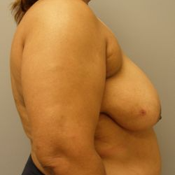 55-64 year old woman treated with Breast Reduction before 3280627