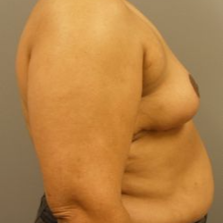 55-64 year old woman treated with Breast Reduction after 3280627