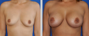 Flash Recovery Breast Augmentation (TM) before 256405